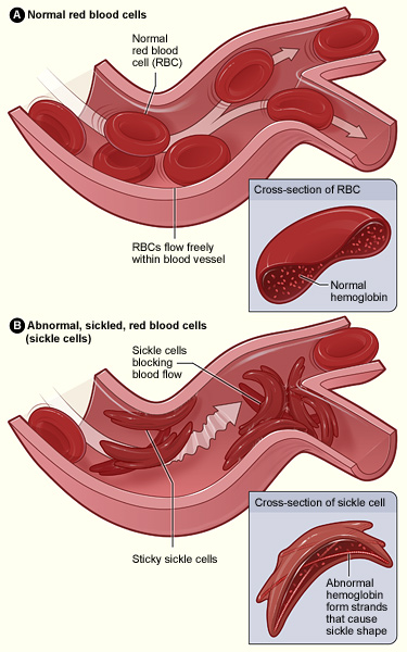 Sickle_cell_pathophys